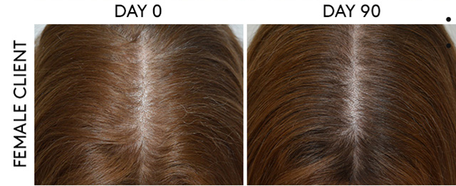 rene furterer thinning hair before and after